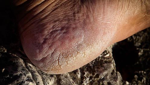 Para la psoriasis los pinchazos