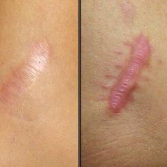 remedios caseros para tratar las cicatrices de eczema
