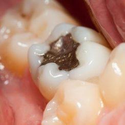 remedios caseros para la caries dental