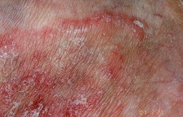 El tratamiento de la infección bacterial de la uña