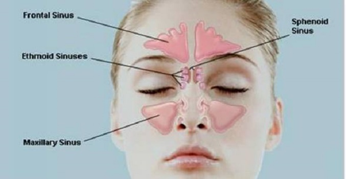 recetas caseras para la rinitis y sinusitis