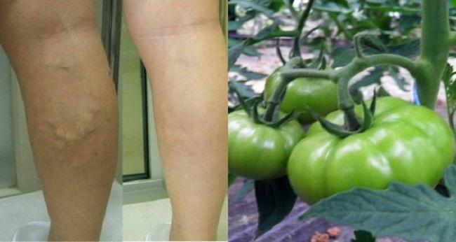 tomate-verde-para-las-venas-varicosas