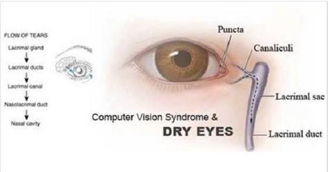sindrome-de-vision-de-computadora