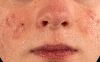 cura-el-acne