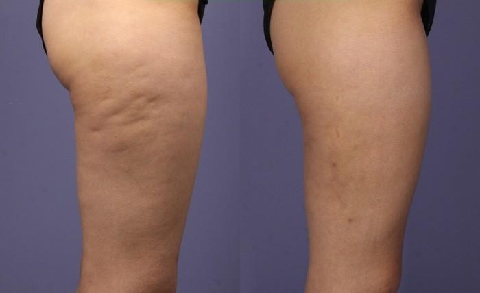 como eliminar la celulitis de las piernas naturalmente