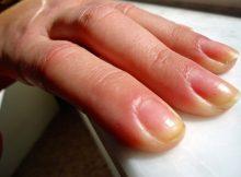 como quitar las uñas amarillas