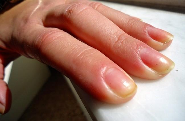10 maneras de como quitar las u as amarillas y gruesas - Como quitar las humedades de la pared ...