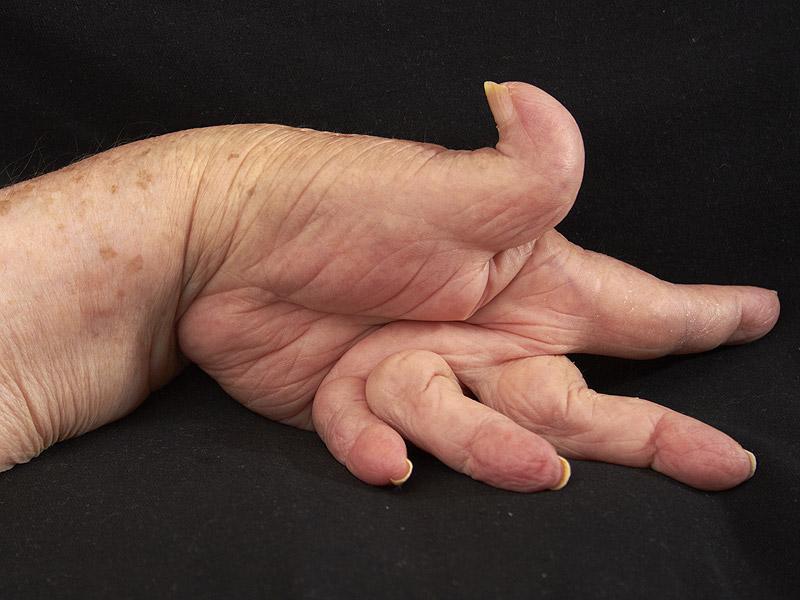 remedios caseros para la artritis reumatoide