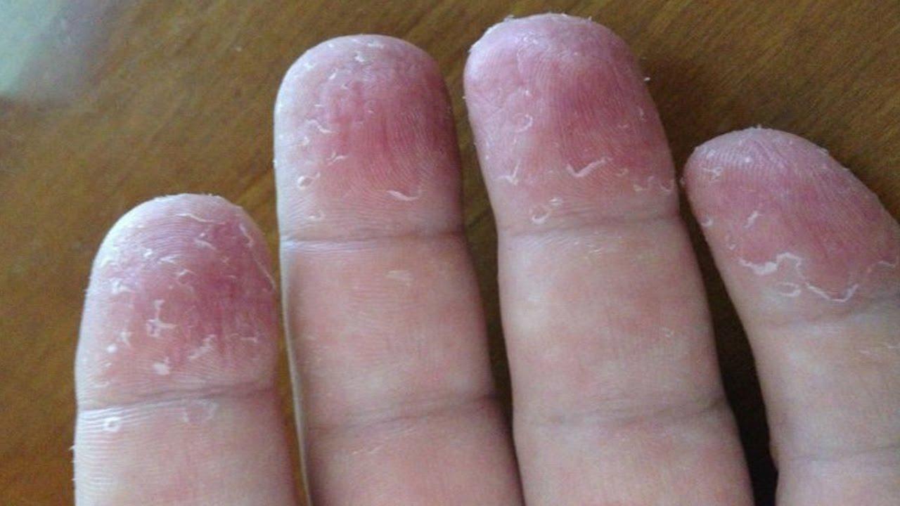 El hongo del pies en los pies que curar las medicinas y el precio