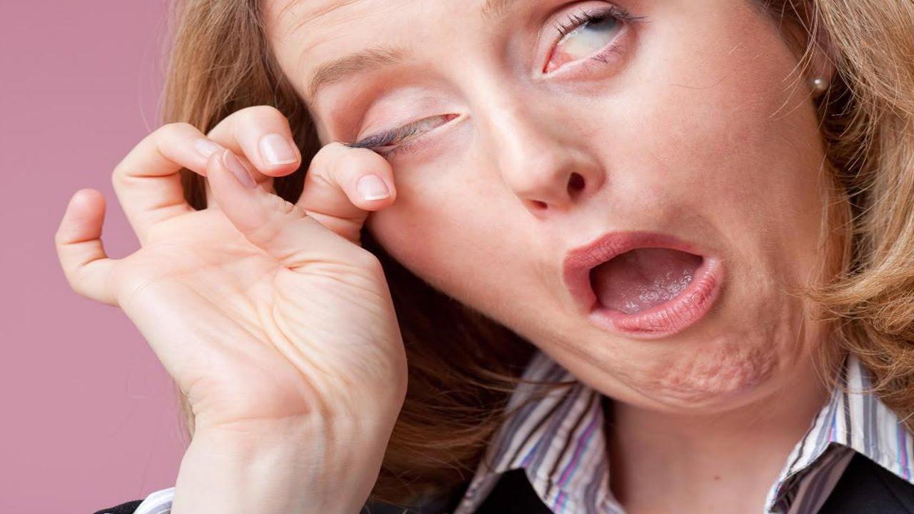Remedios caseros para el picor de ojos