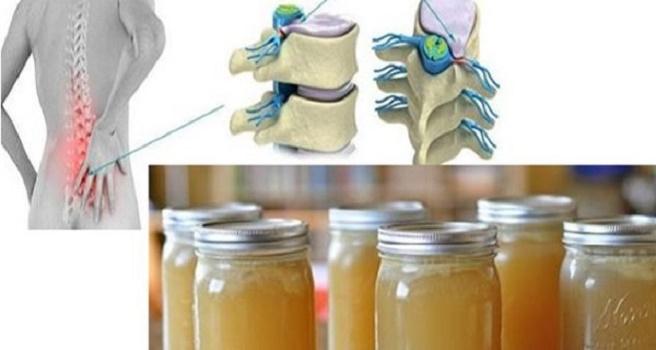 receta va a curar su dolor de espalda, las rodillas y las articulaciones