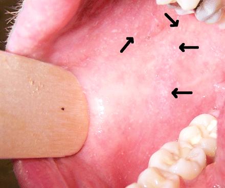 Manchas de Koplik en la boca