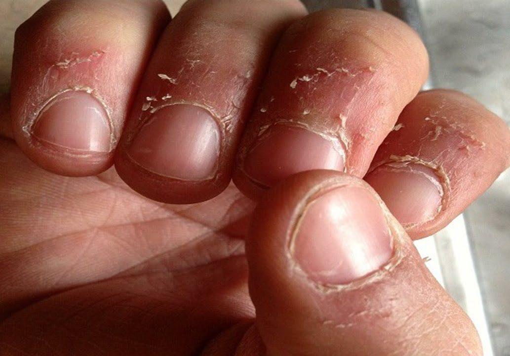 Los medios del hongo de la uña en los pies