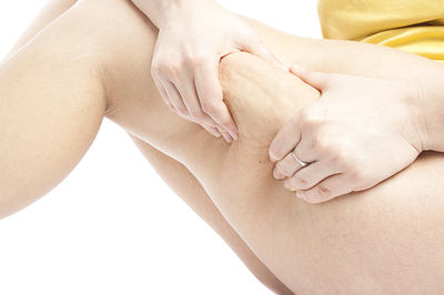 elimina-la-celulitis