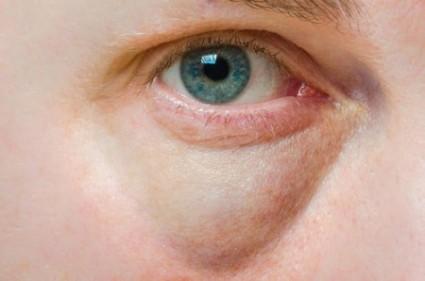 se-usa-para-tratar-los-ojos-hinchados